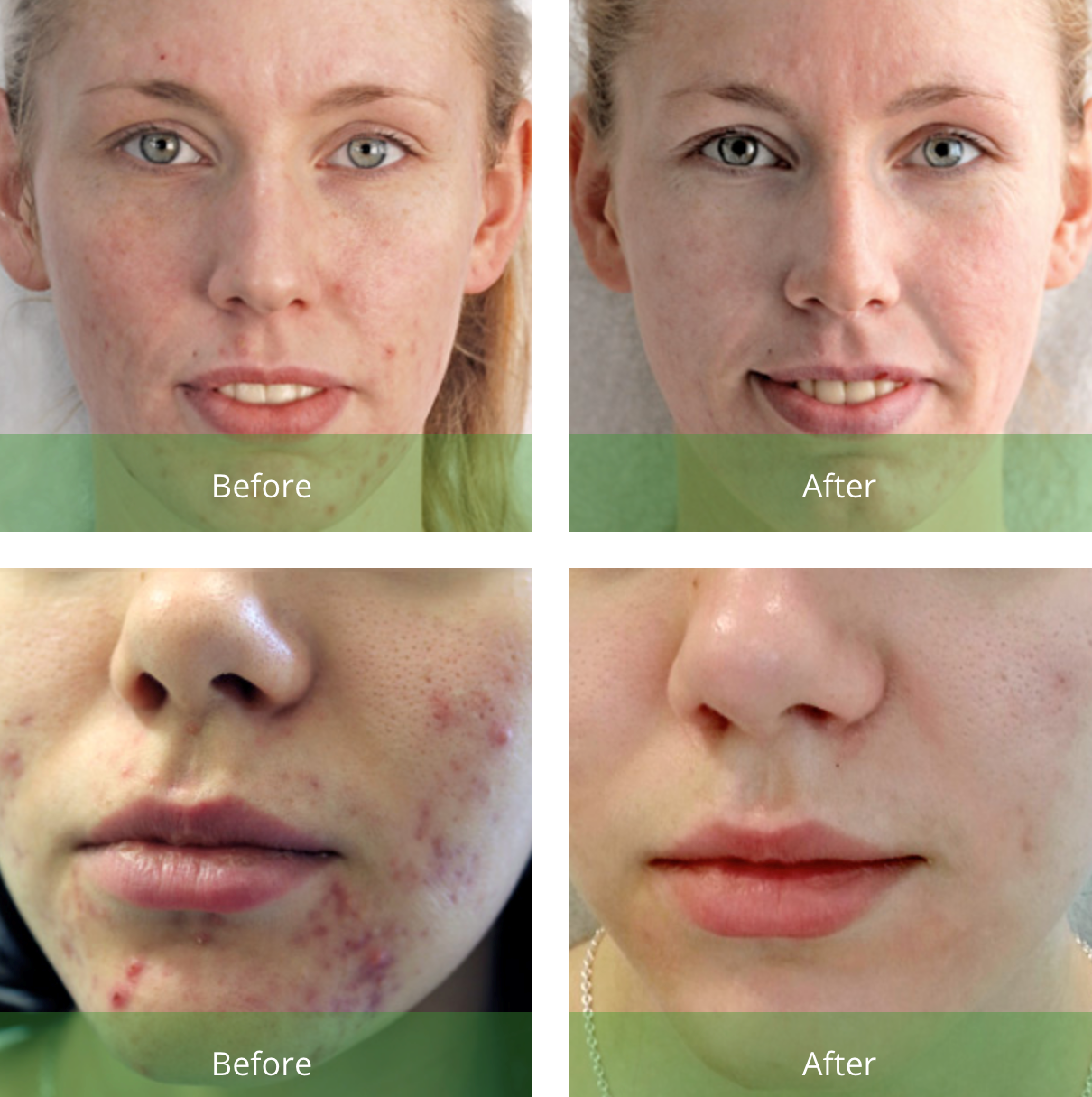 Before and After Green Peel